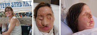Charla Nash face transplant three views