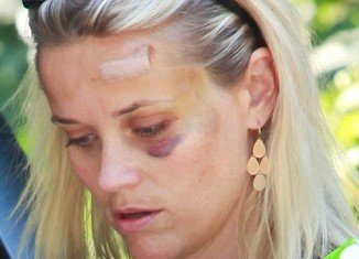 Reese Witherspoon has a black eye after she was hit by a car last week