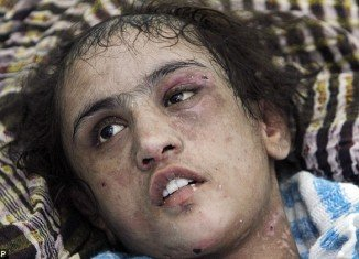 15-year-old Sahar Gul became the bruised and bloodied face of women's rights in Afghanistan after she was rescued in late December when an uncle called police