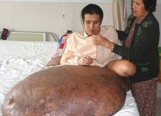 Nguyen Duy Hai from Vietnam has come through a 12-hour operation to remove a 198 lb tumour from his right leg