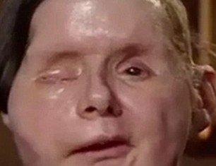 Charla Nash after face transplant