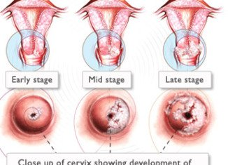 The Swedish study shows a 92 percent cure rate of cervical cancer after a smear test diagnosis, compared with 66 percent for symptoms-based diagnoses