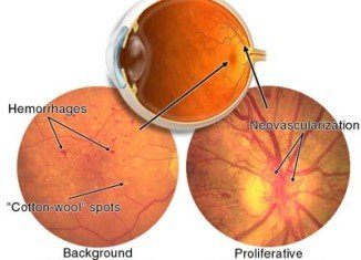 The eye condition the researchers were looking at was retinopathy, which is common in patients with Type 2 diabetes or high blood pressure