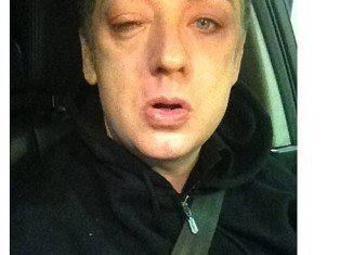 Boy George was injured as he left the Amadeus nightclub in Northallerton, North Yorkshire on Saturday evening