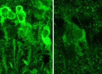 Neurons in the hippocampus exposed to large amounts of alcohol produce steroids, which inhibit the formation of memory (left), vs. normal neurons (right)