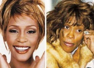 Whitney Houston's autopsy report has revealed that large parts of her skin were burnt off from the scalding hot bath in which she was found