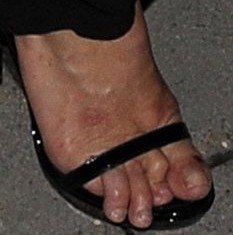 Kate Moss' feet appeared to be disfigured as her toes were bent and claw-like curling around her shoes