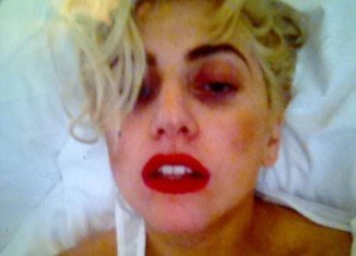 Lady Gaga has taken to Twitter to post up a photo of herself with her black eye which was caused by the Auckland concert incident