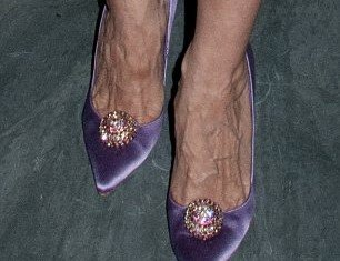 The bulging veins on Sarah Jessica Parker's feet can also be seen on her hands