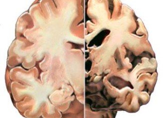US scientists have recently identified a possible genetic link between diabetes and Alzheimer's disease