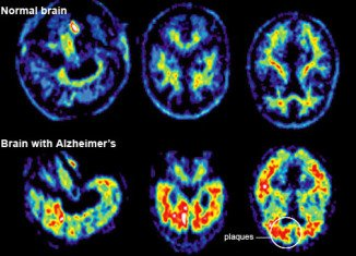 """A team at Washington University School of Medicine has assembled a """"timeline"""" of the unseen progress of Alzheimer's before symptoms appear"""