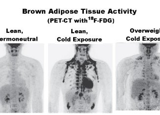 Scientists have discovered that brown fat is a good thing because it produces lots of heat by burning calories