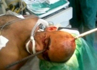 Eduardo Leite has survived after a 6-foot steel rod fell from above and pierced his head