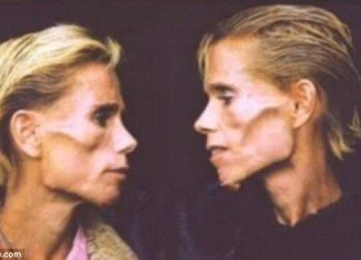 Identical twins Clare and Rachel Wallmeyer, who became famous through their desperate battle with anorexia, have died in a house fire aged 42