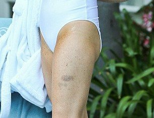 Lindsay Lohan's eye-catching look was tainted by blotchy fake tan, which was particularly noticeable around her armpit