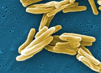 British experts have found that vitamin D could help the body fight infections of deadly tuberculosis