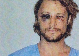 Gabriel Aubry displays painful-looking and swollen black eye, along with cuts under his left eye and on his forehead and the bridge of his nose following brawl with Olivier Martinez