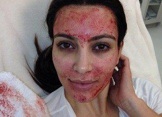 Kim Kardashian got a blood facial on Sunday's episode of her reality show Kourtney and Kim Take Miami