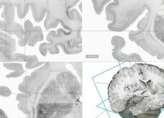 Big Brain is the first high-resolution 3D digital model of the human brain