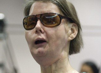 Charla Nash, who lost her eyesight, lips, nose, and hands when she was mauled by a chimpanzee in 2009, has been denied permission to sue Connecticut state