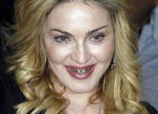 Madonna was keen to give fans and photographers a closer look at her gold grills as she paid a visit to the Hard Candy fitness studio in Rome