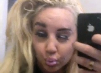 Amanda Bynes is still going for treatment in a California hospital and will need 18 months to complete that treatment