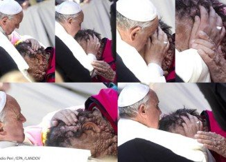 Pope Francis touched the nearly 50,000 attendees at Wednesday's general audience in St. Peter's Square by embracing an ailing man who suffers from a disfiguring genetic disorder