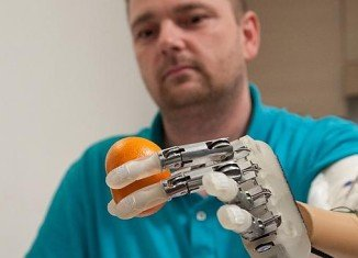 Dennis Aabo, who lost his left hand in a firework accident nearly a decade ago, said the bionic hand was amazing