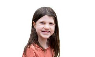 Mia Robertson was born with cleft lip and palate