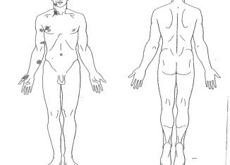 Michael Brown was shot at least six times, including twice in the head