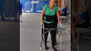 Paralyzed swimmer Amy Van Dyken-Rouen is walking for the first time with the help of bionic legs