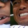 Tiger Woods tooth: Lindsey Vonn confirms incident